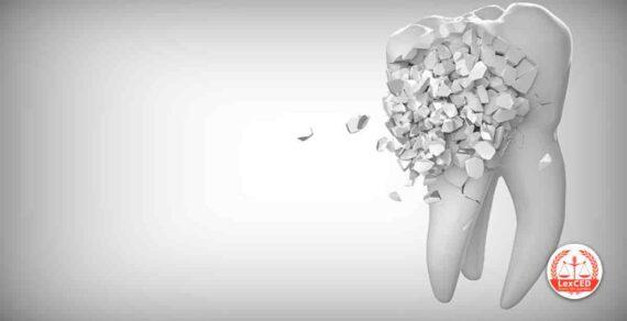 Diritti del committente, difformità e vizi, opera professionale intellettuale del dentista